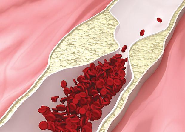 vysoký cholesterol ovplyvňuje erekciu
